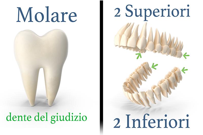 Cosa sono i denti del giudizio