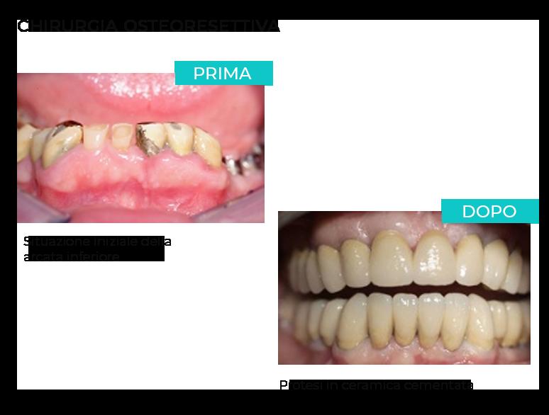 Intervento chirurgia orale