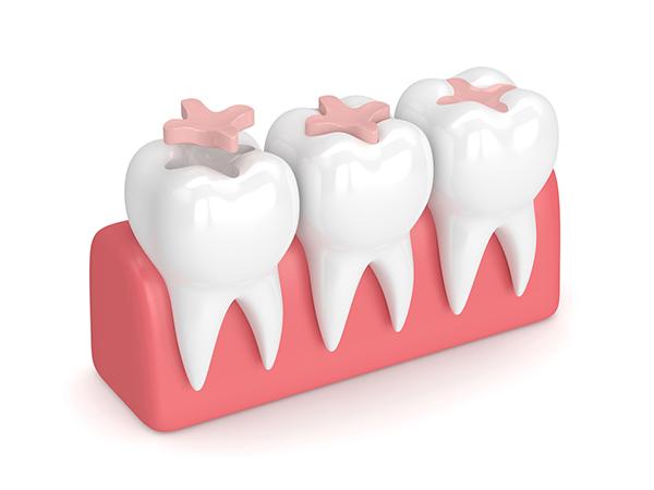 Otturazione denti Lodi