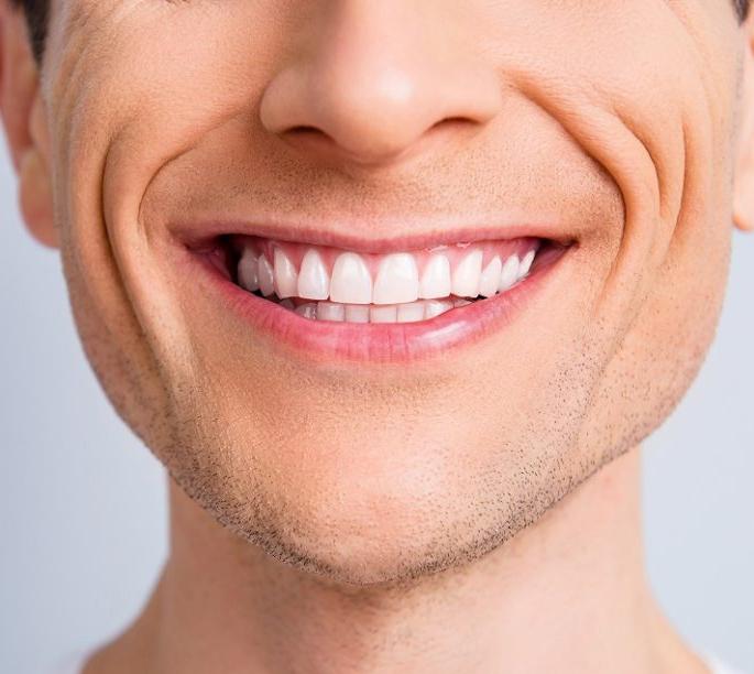 Ortodonzia invisibile Lodi