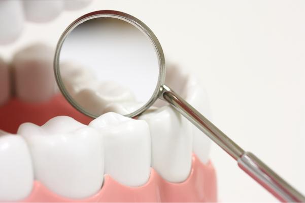 Prevenzione Parodontite