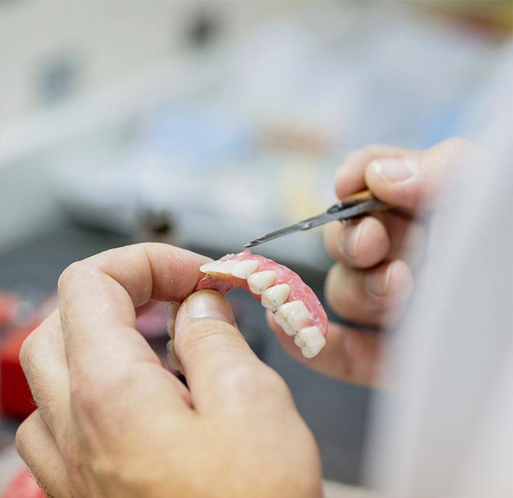 Protesi dentali mobili